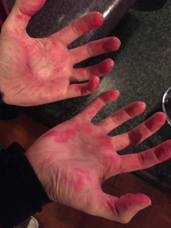 dauber hands